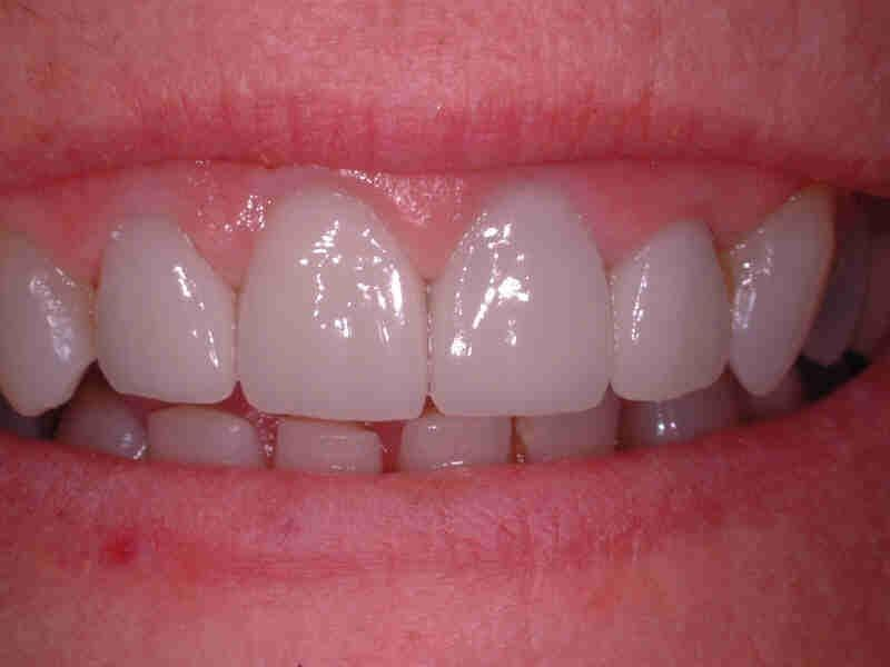 smile after cosmetic dentistry