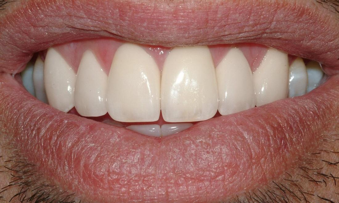 patient's smile after straightening front teeth