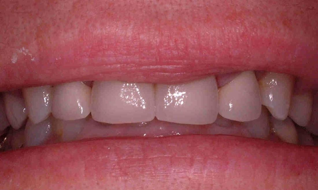 close up of patient's smile after cosmetic dentistry