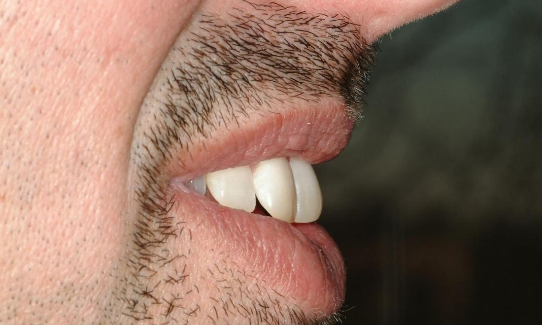 profile of patient's smile showing front teeth bending in