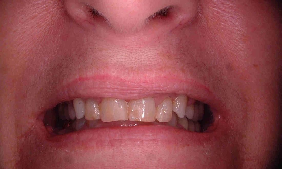 patient's teeth were discolored and misshapen
